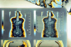 Color Enhanced CT Scan X-Ray